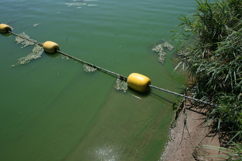 Blue-green algae, or cyanobacteria, turned the Green Valley Lake green and produced high levels of microcystin, a liver toxin that can cause skin rashes, gastrointestinal issues and, in high doses, liver failure. Pictured July 31, 2015.