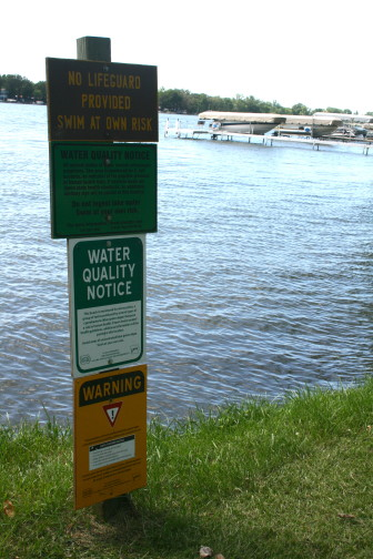 A yellow sign at the base warns swimmers of high levels of microcystin, a liver toxin produced by cyanobacteria in the North Twin Lake on July 30, 2015.