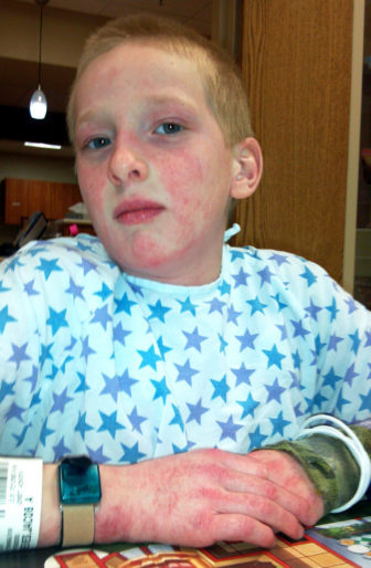 "Jacob Reeves is shown in the hospital while being treated for the extremely rare disease juvenile dermatomyositis in 2014. During his treatment he received heavy doses of steroids, as well as an immunoglobulin treatment called ""IgG"" which combines antibodies (immunoglobulin G) from 1000 different donors."